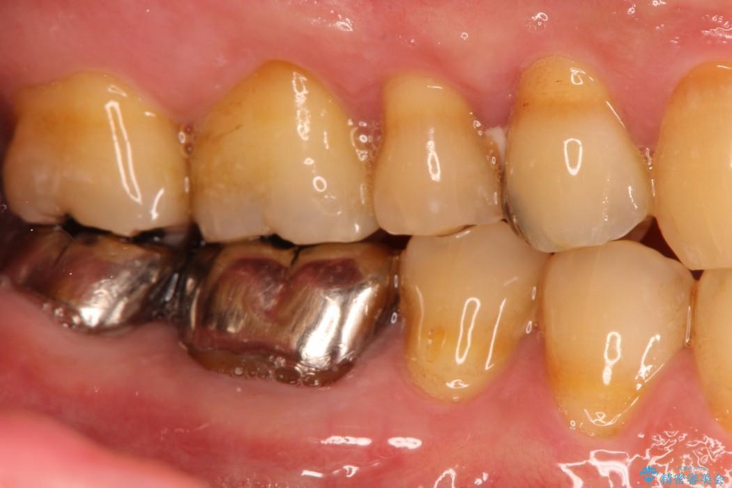 huge discount 03aae d1d63 奥歯のセラミッククラウンとゴールドインレー 治療例(ビフォー ...